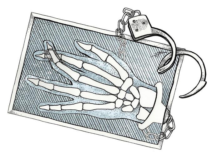 De gevangene beweerde dat zijn hand gebroken was, maar op de röntgenfoto bleek daar geen sprake van te zijn.