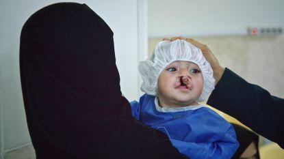 """PREVIEW. Topdokter Nadjmi bezoekt baby met ernstige schisis: """"Hij kan zelf niet eten"""""""