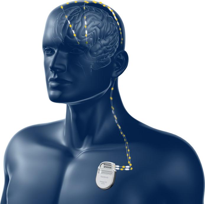 Bij een deep brain stimulation-operatie worden twee elektrodes in de hersenen van een patiënt geplaatst. De neurostimulator worden onderhuids geïmplanteerd, onder het sleutelbeen.