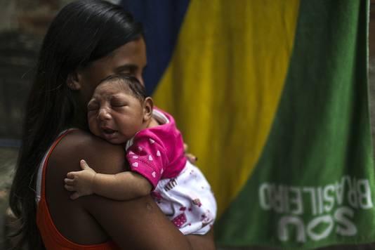 Een pasgeboren baby met microcefalie.