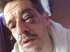 Patrick de Haardt (45) ontwaakt in ziekenhuis na zware mishandeling: 'Het moet eens afgelopen zijn in Oss'
