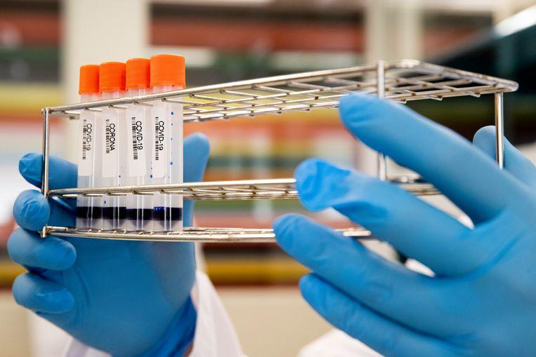 Om de bloedtests te kunnen verwerken en uitslagen zo snel mogelijk te kunnen geven, zijn de werktijden in het lab aangepast.  Beeld null
