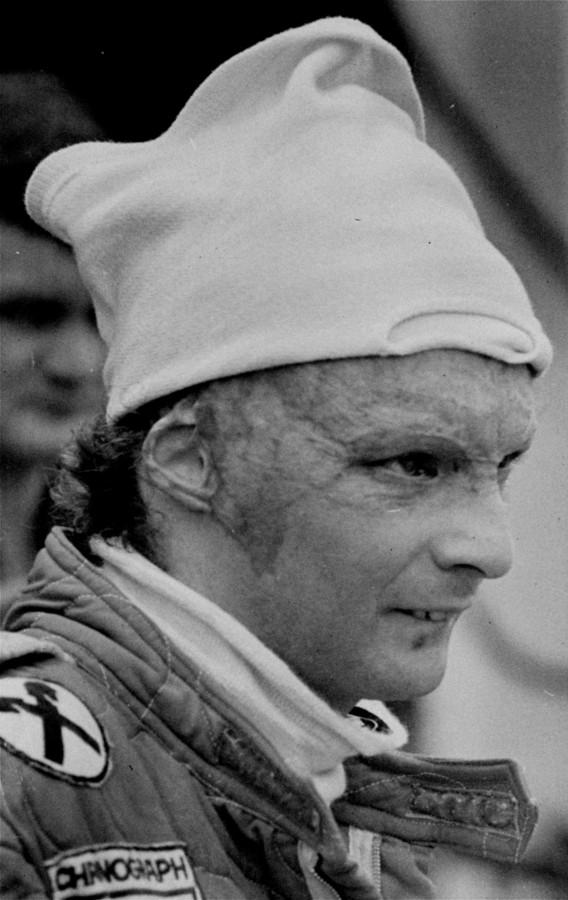 Niki Lauda in 1977