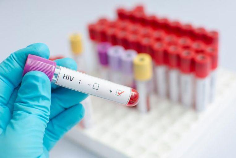 Wie verdacht wordt van een verkrachting kan voortaan verplicht worden een hiv-test te ondergaan.