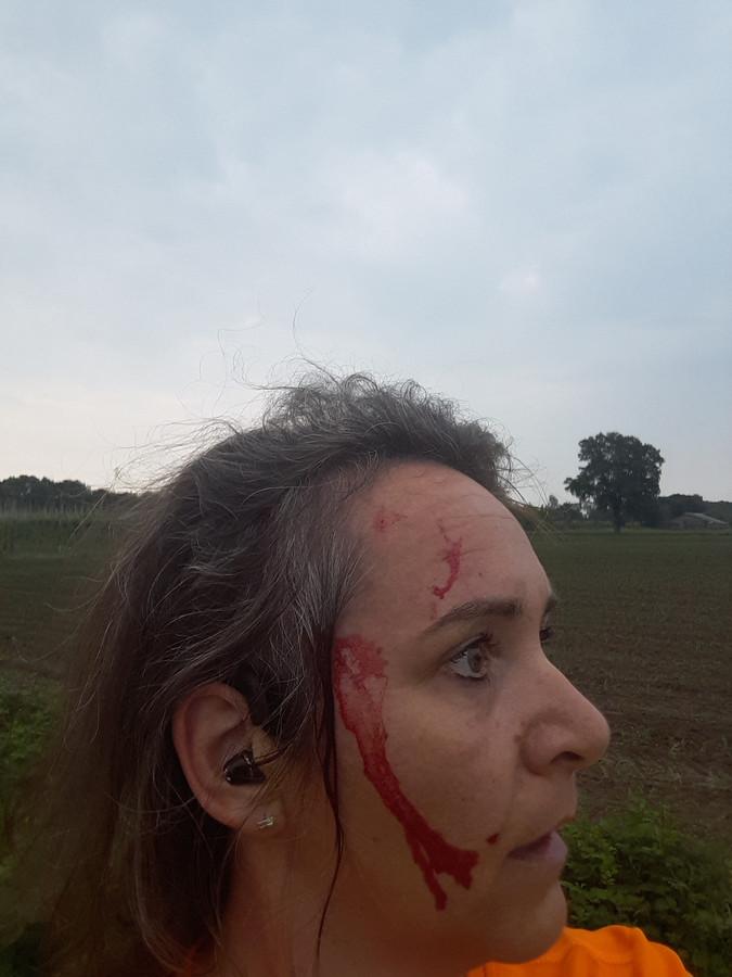 Suzanne van Vugt is aangevallen door een roofvogel in Heukelom. Hij doorboorde haar achterhoofd met zijn klauwen.