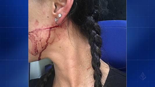 De verminking die haar aan het gezicht werd toegebracht.
