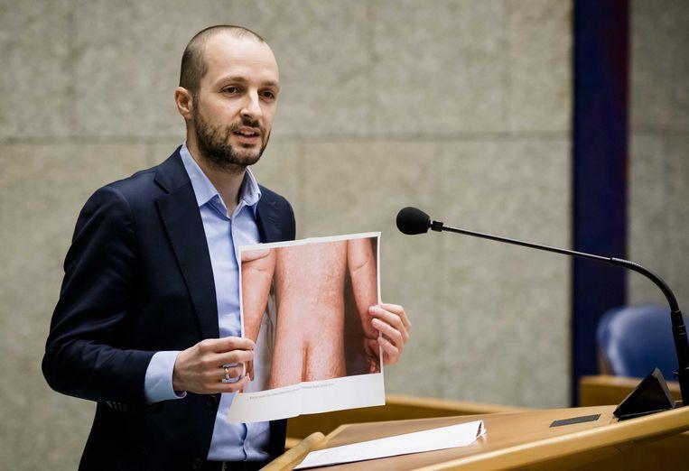 Maarten Heijink (SP) laat een foto zien van iemand met de mazelen tijdens het Tweede Kamerdebat over vaccinatie. Beeld ANP
