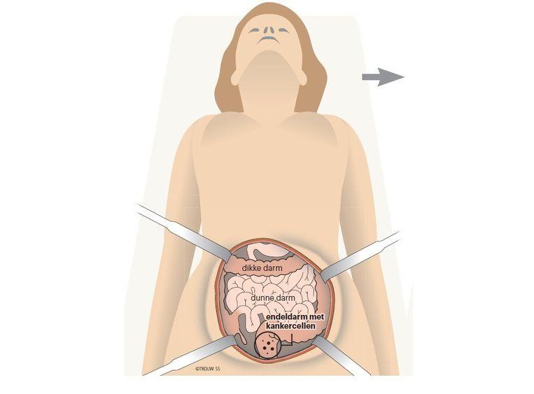 Chirurgie: kankercellen worden weggesneden Beeld Trouw: SS