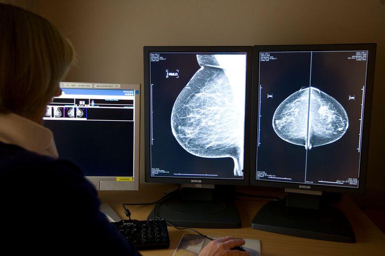Een mammografie. Beeld ANP XTRA
