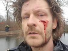 Agent in gezicht gestoken met schroevendraaier: 'Gelukkig onder oog'