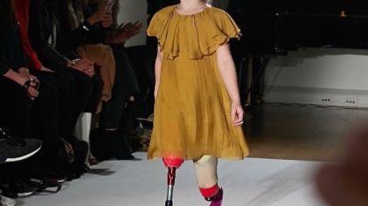7-jarig meisje met beenprotheses maakt het als model