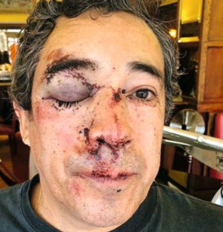 Rogers Delgado-Saez (63) werd begin deze week lelijk toegetakeld op de Brusselse Vismarkt.