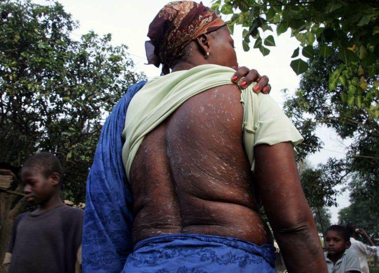 In 2007, een jaar na de dumping van chemisch afval door Probo Koala in Abidjan, toont Agbo N'Guessan, afkomstig uit een naburig dorp, haar rug. De huid zou beschadigd zijn door het chemisch afval.  Beeld AFP
