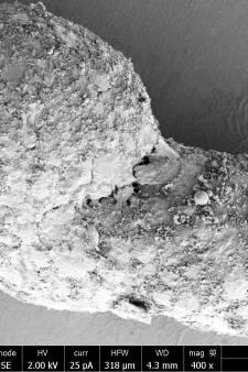 Un embryon humain développé à partir de cellules souches