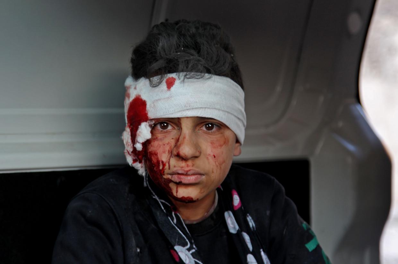 Een foto van een gewond Syrisch kind door een bombardement van het Assad-regime ging de wereld rond.