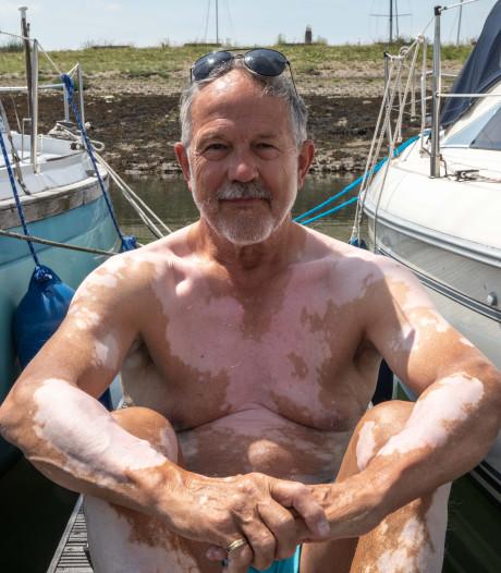 Leo uit Yerseke kreeg opeens witte vlekjes op zijn huid: 'Mensen denken vaak dat het besmettelijk is'