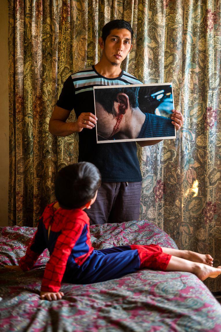 Activist Fausto Jones laat zijn verwondingen zien. Zijn zoon kijkt toe. Beeld Foto Pablo E. Piovano