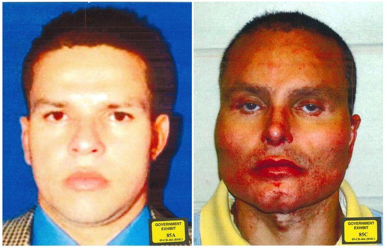 Juan Carlos Ramirez voor en na zijn plastische chirurgie.