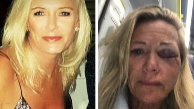 Karen voor en na de brutale aanval.