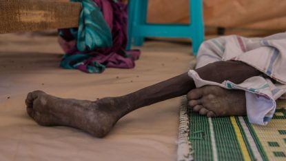 Opnieuw meer honger in de wereld: 1 op 9 mensen heeft te weinig eten