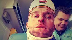 """Wagen rijdt Pool Marczynski (Lotto Soudal) aan op training: """"Gelukkig geen breuken"""""""
