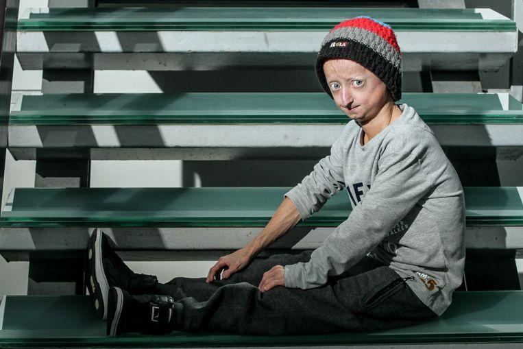Michiel Vanderweert is ondertussen 19 jaar oud en heeft het middel al getest.