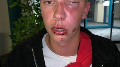 """Bruce (19) slachtoffer van zinloos geweld op slotdag Lokerse Feesten: """"Klappen gekregen  omdat vriend niet meteen sigaret gaf"""""""