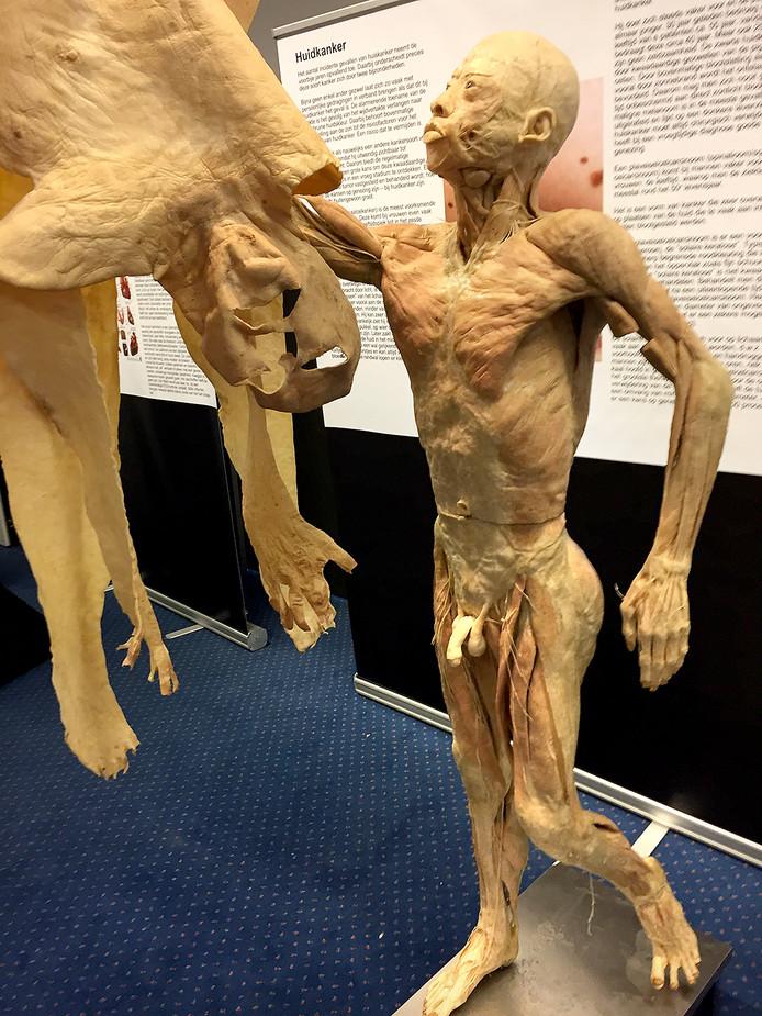 De rondreizende expositie Real Human Bodies was vorig jaar in Breda te zien.