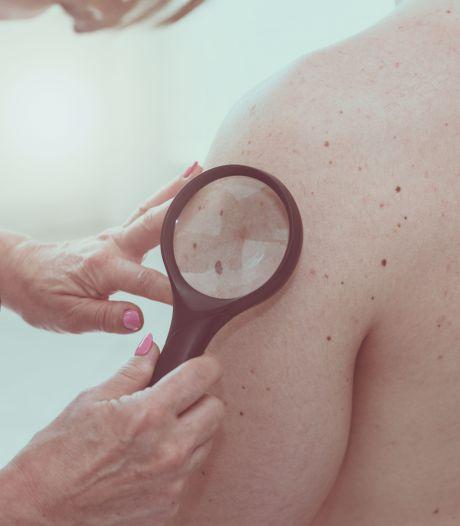 'Apps voor scannen verdachte huidplekjes niet altijd betrouwbaar'