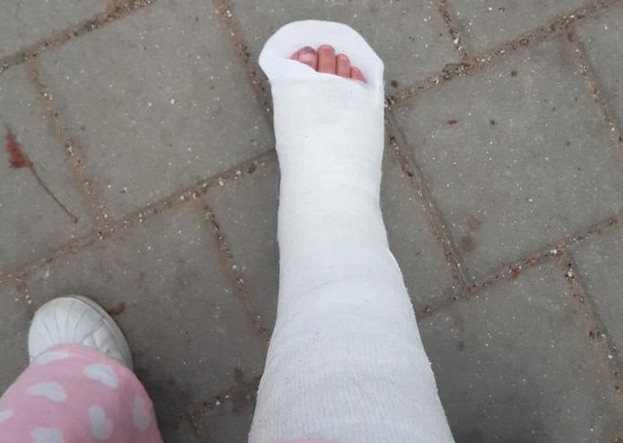 Het been van Saskia in het gips