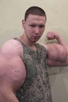 Popeye-bodybuilder wil af van met olie gevulde megabiceps