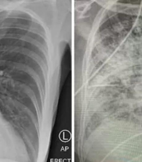 """La radiographie des poumons d'un patient infecté par la Covid-19:  """"Ils sont dans un pire état que ceux d'un fumeur"""""""