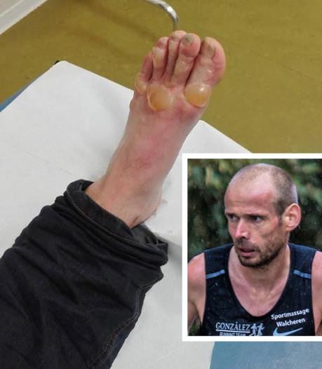 Hardloper Erwin Harmes krijgt kokend water over voet: 'Heb het minuten uitgeschreeuwd van de pijn'