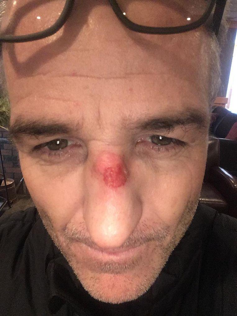 Een vrieswonde op Eriks neus.