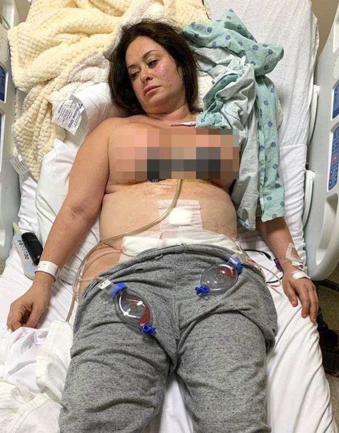Lyndsay Colosimo après son opération chirurgicale.