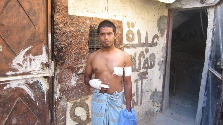 Mohoen uit Bangladesh toont de verwondingen die hij opliep toen hij werd beroofd door een paar Libische jongens met messen. 'Eigenlijk zijn we nergens veilig.' Beeld Marijn Kruk