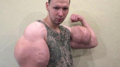 """Bodybuilder laat met olie gevulde megabiceps weghalen: """"Raar hoor, die dunne armen"""""""