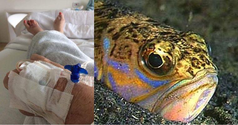 Isabelle Van Hulle (55) ligt al vijf dagen in het ziekenhuis na haar kennismaking met het gif van de kleine pieterman.