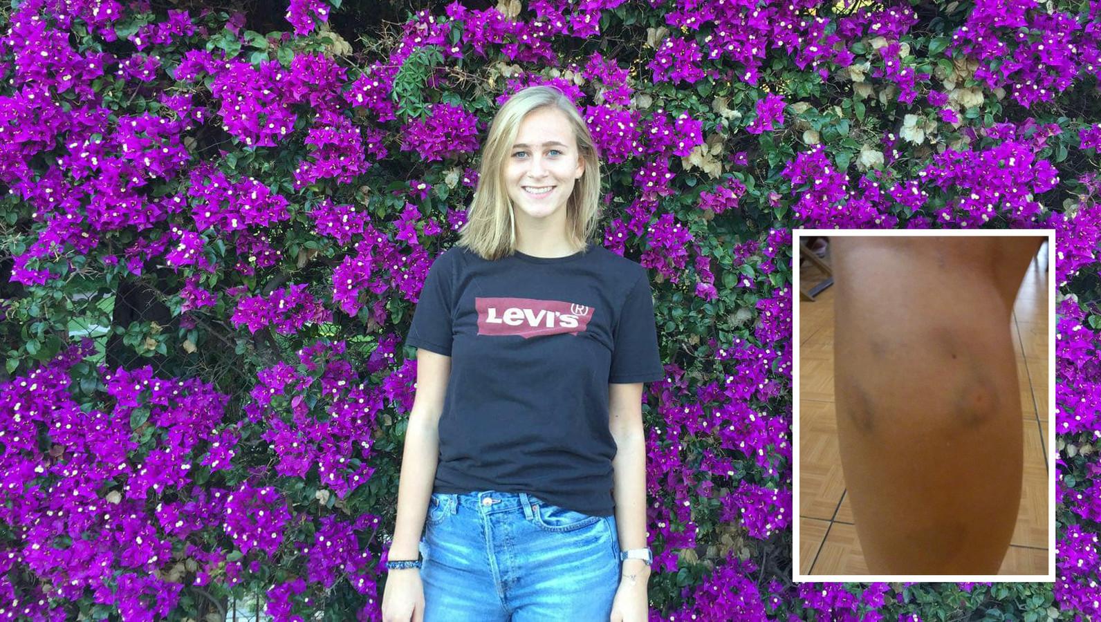 Renée Meijer werd in Vietnam gebeten door een hond