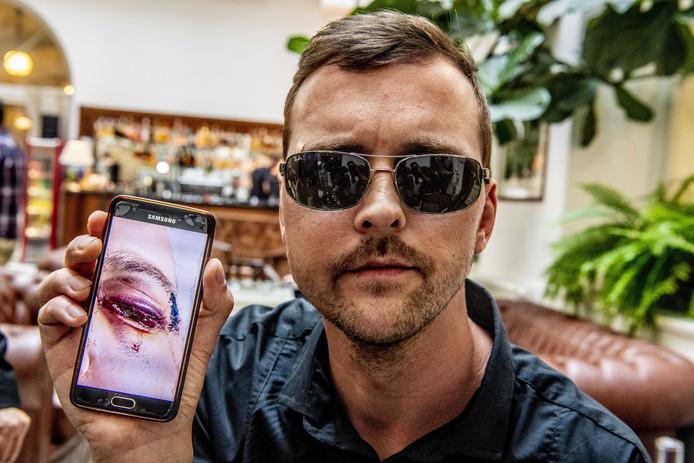 De Praagse ober Mirek van het Polpo restaurant, die is mishandeld door een groep Nederlanders, laat een foto zien van zijn verwondingen. ANP ROBIN UTRECHT