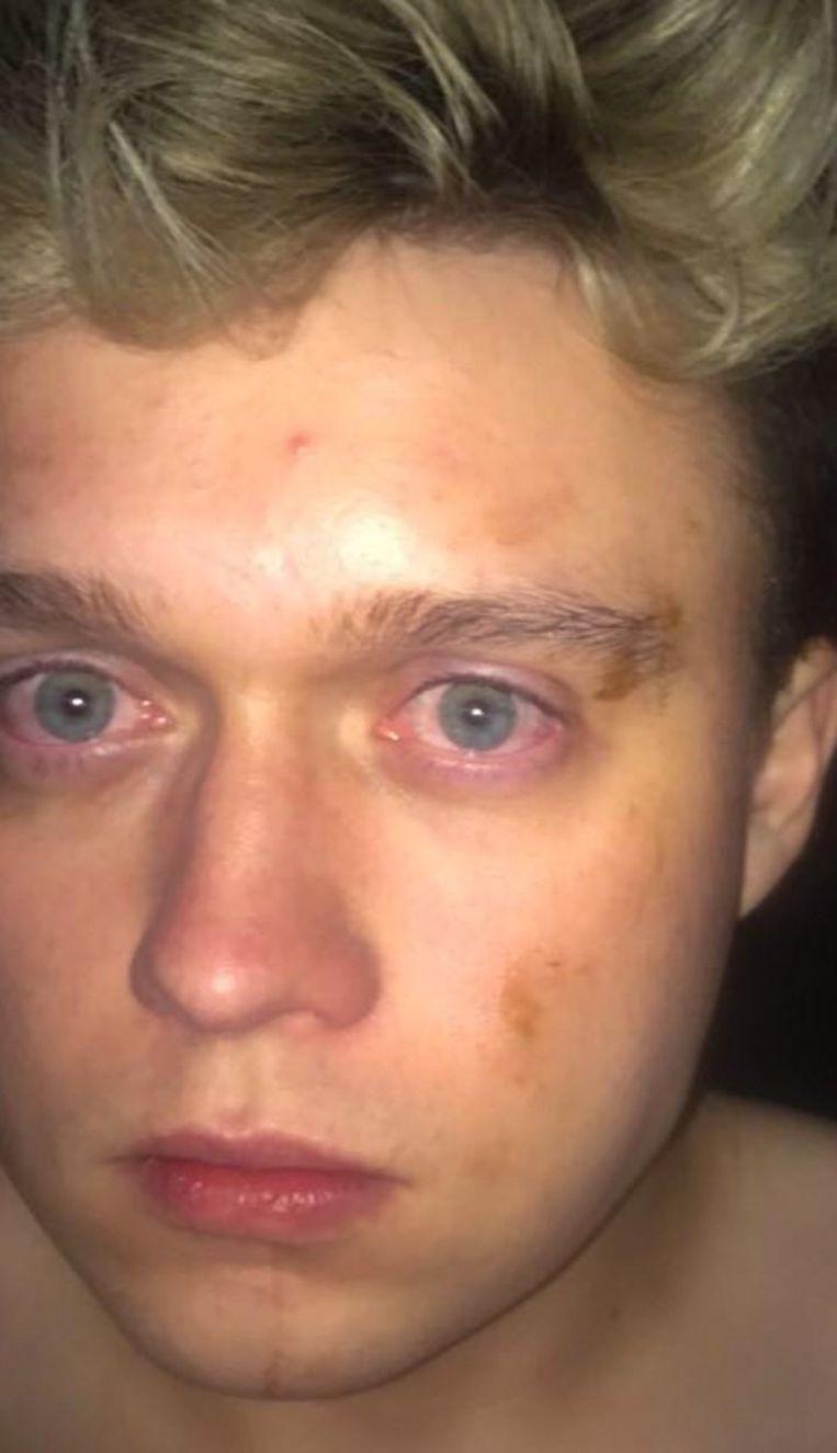 Boycode-zanger Timmy Van Lysebeth hield aan de aanval een gekneusde oogkas en kaak over.
