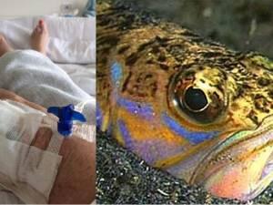 Isabelle, 55 ans, hospitalisée après avoir été piquée par un poisson à la côte