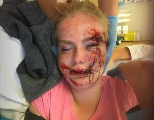 De zwaar gehavende Cheyenne Spinhoven vlak na het ongeluk.
