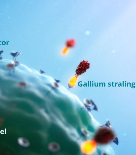 Extra straling effectief bij prostaatkanker