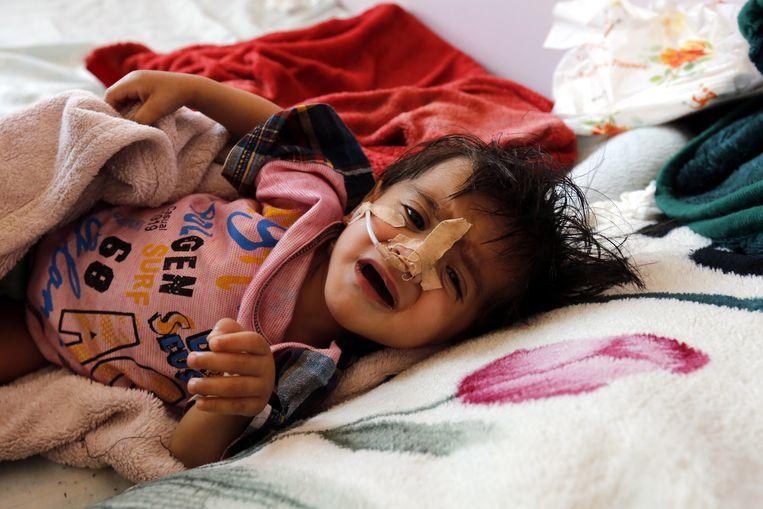 Een ondervoed kind in een ziekenhuis in Jemen.