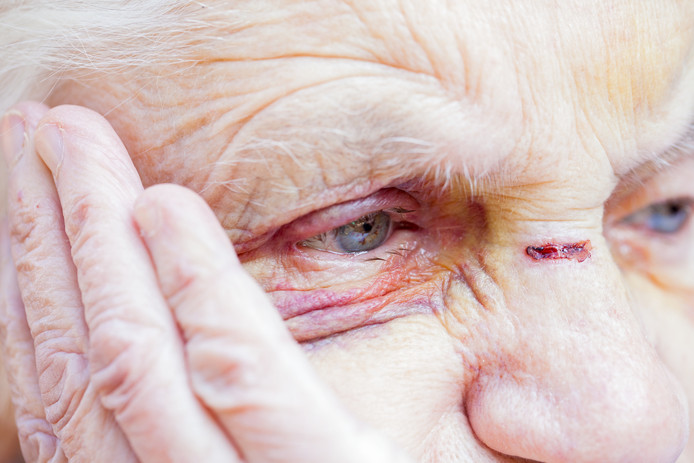 Close up picture of an injured elderly woman's eyes & face