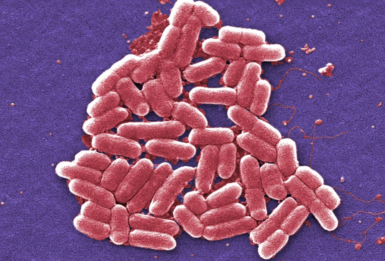 Microscoopbeeld van E.coli-bacteriën.