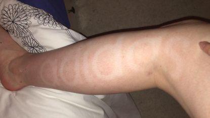 Foutje bij het zelfbruinen: vrouw laat letters van haar sportbroek erin 'bruinen'
