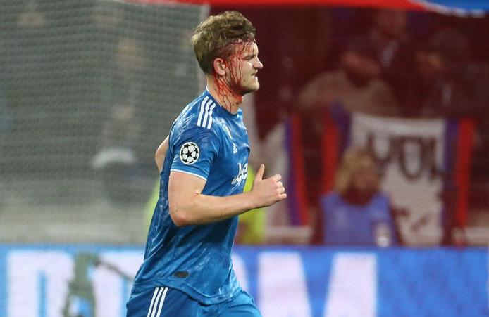 Matthijs de Ligt liep tijdens het duel met Olympique Lyon een fikse hoofdwond op.