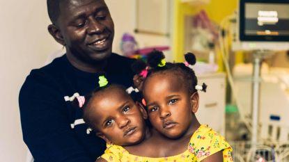 Hartverscheurend dilemma voor vader: Siamese meisjestweeling scheiden of niet?